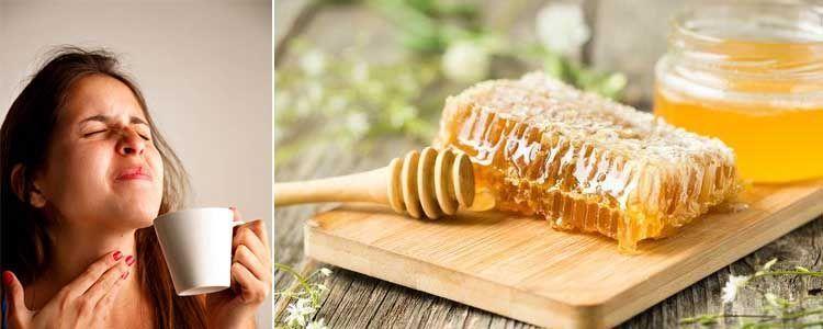 Alimentos y remedios naturales para la afonía