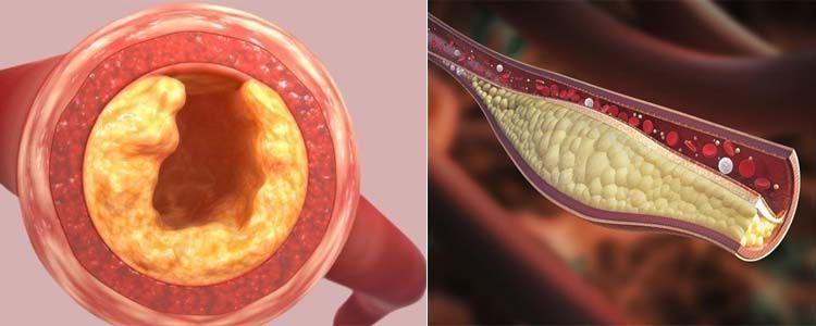 guía sobre cómo bajar los triglicéridos del organismo