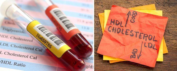 Diferencias entre colesterol malo y bueno